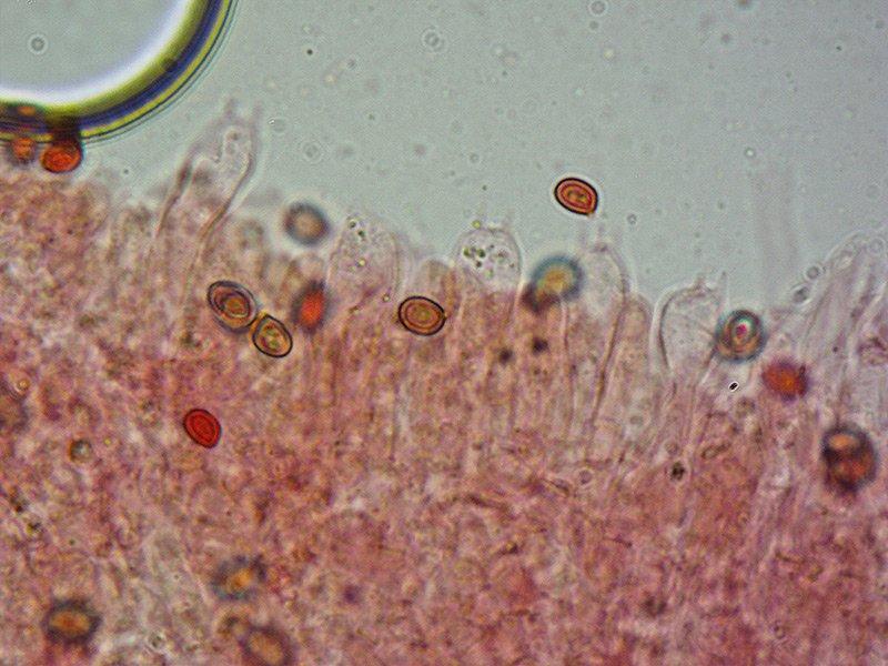 Lyophyllum-ignobile-16-Spore-400x-RC.jpg