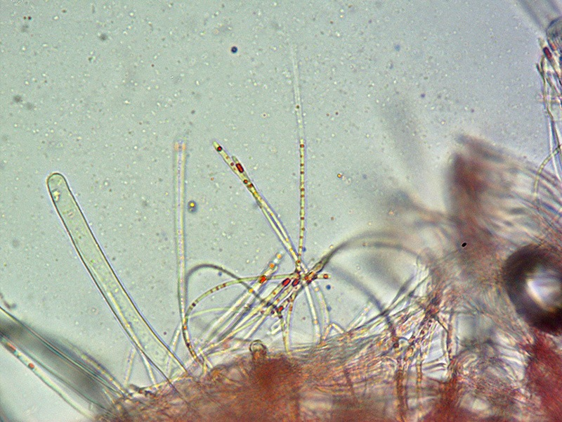 Sarcoscypha coccinea 04 Parafisi 400x L4.jpg