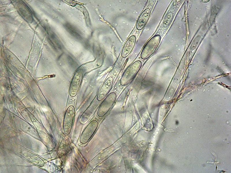Sarcoscypha coccinea 21-24 Spore 400x L4.jpg
