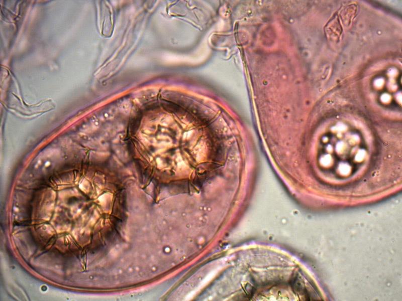 Tuber-magnatum-spore-14_1000x.jpg