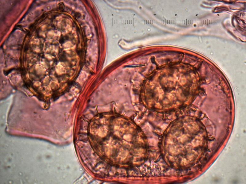 Tuber-magnatum-spore-20_1000x.jpg
