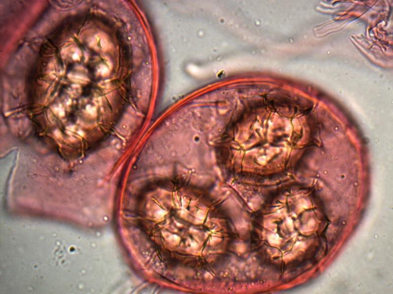 Tuber-magnatum-spore-22_1000x.jpg