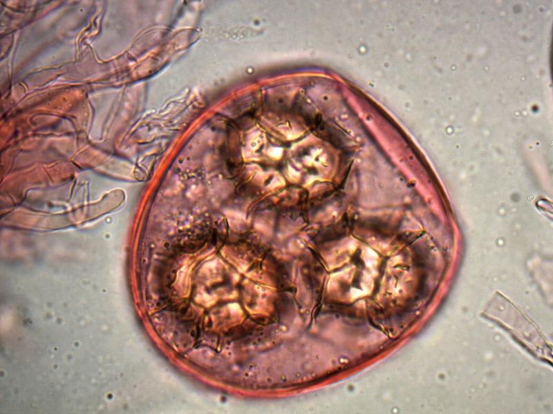 Tuber-magnatum-spore-28_1000x.jpg