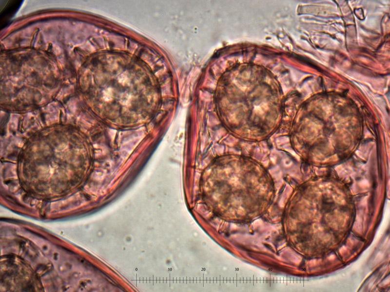Tuber-magnatum-spore-44_1000x.jpg