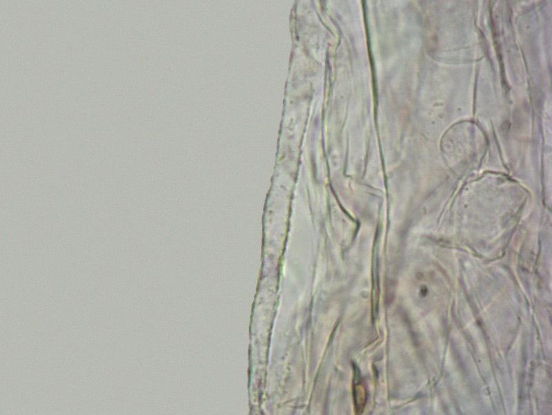 Entoloma juncinum 60-1 Cuticola ife superficiali pigmento incrostante L4 1000x.jpg
