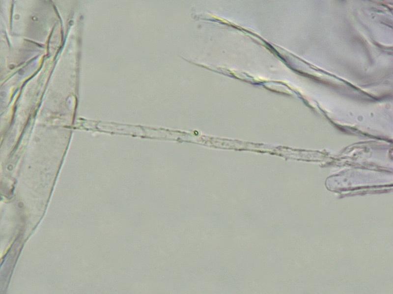 Entoloma juncinum 67-72 Cuticola ife superficiali pigmento incrostante L4 1000x.jpg