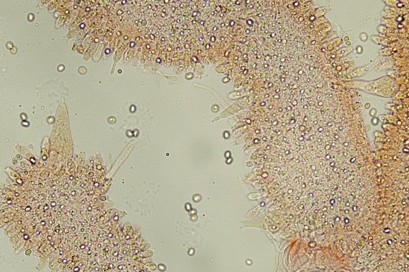 Pleurocistidi 2.jpg