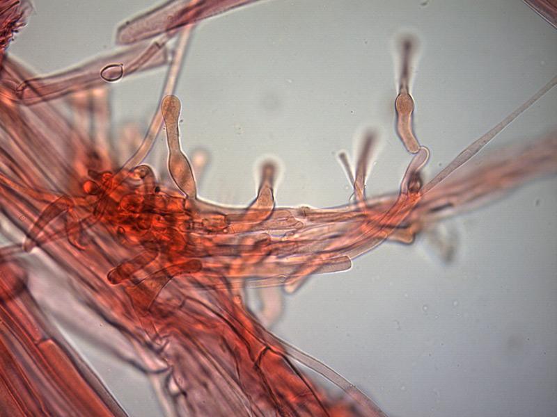 Galerina-clavata-caulocistidi-7_400x-000003.jpg