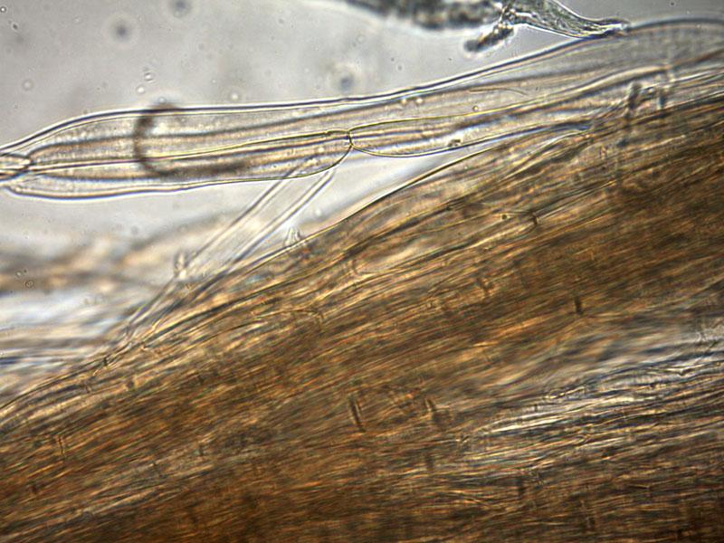 Mycopan-scabripes-pileipellis-H2O-15_400X.jpg